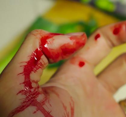 """Schnell passiert, eine abgerutschte Säge, die von einem Ast auf die Hand """"springt"""" (Bildquelle: blutig.ch)"""